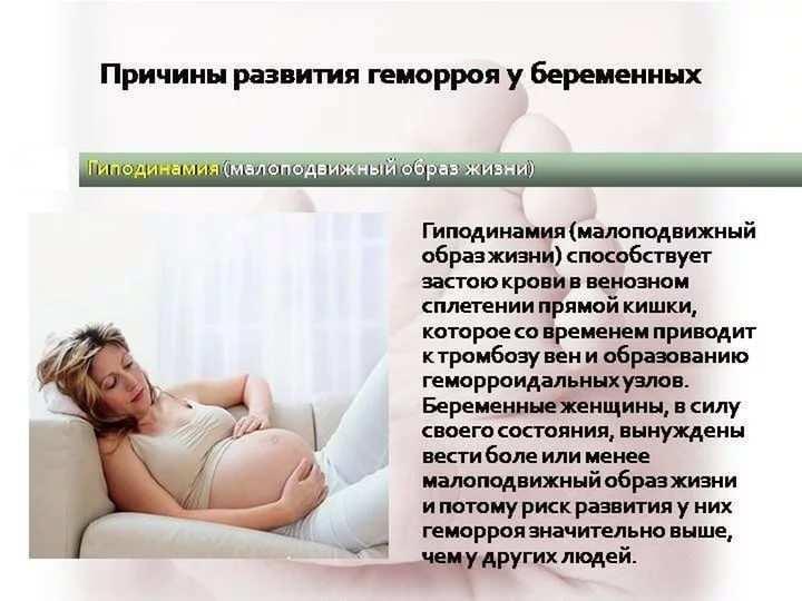 Как лечить геморрой в домашних условиях быстро у женщин беременных 76