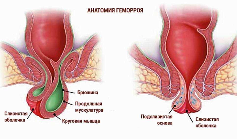 Геморрой состоит из этих нескольких частей