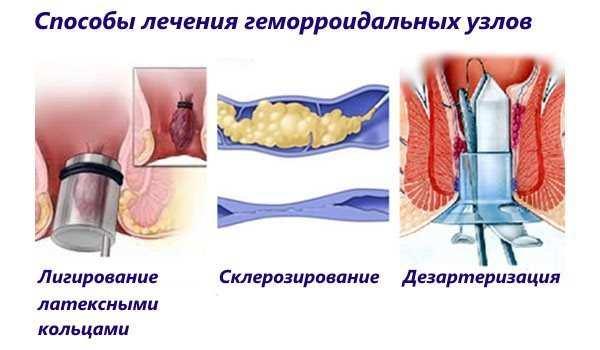 Некоторые из методов лечения